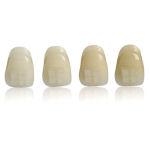 Żółte zęby - porady stomatologa